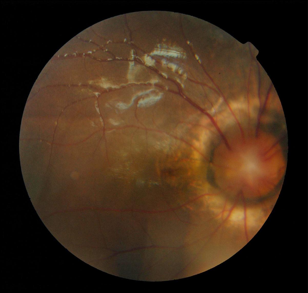 bmc ophthalmology instructions authors