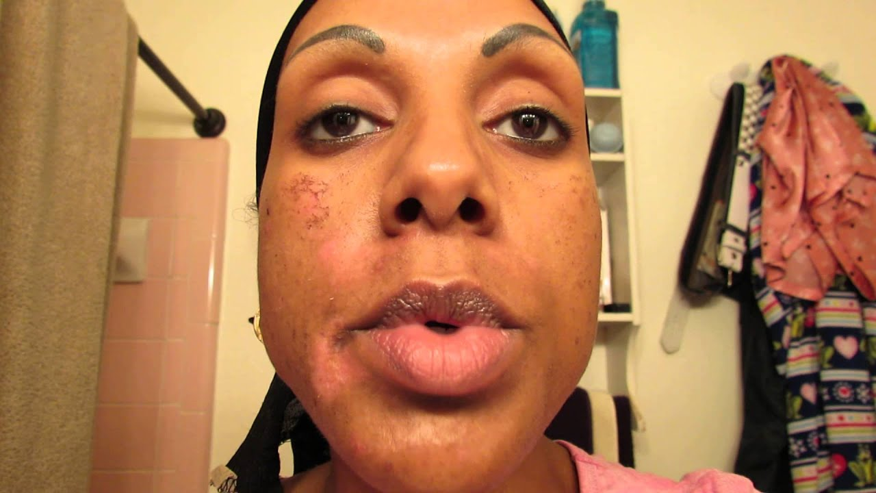 lactic acid face peel instructions