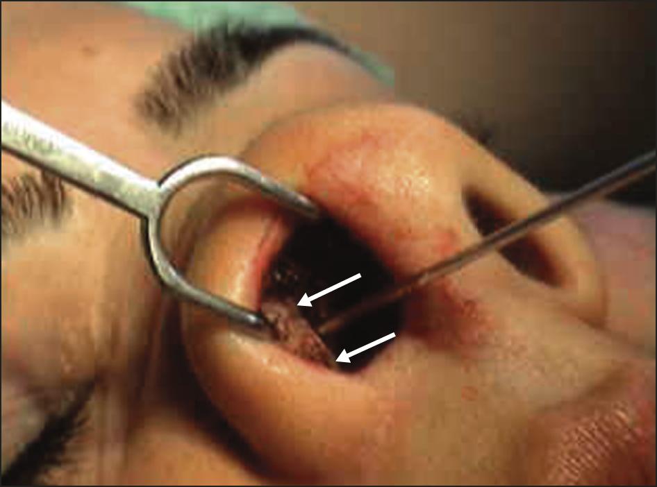 otolaryngology head and neck surgery author instructions